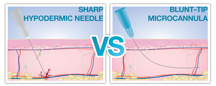 Needle vs Cannula